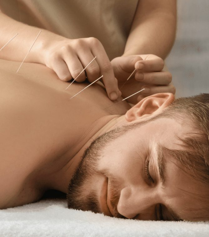 Acupuncture Services in Burnaby BC and Vancouver- Top Reviewed Total Vitality Center Wins Best Health, Wellness and Therapy Clinic Services Mind and Body